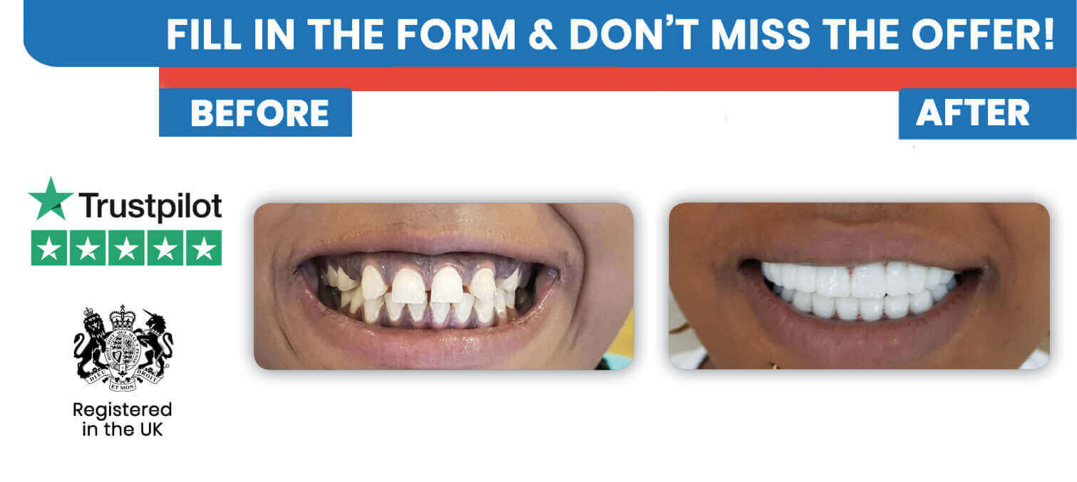 Tooth Crown and Dental Crowns in Turkey