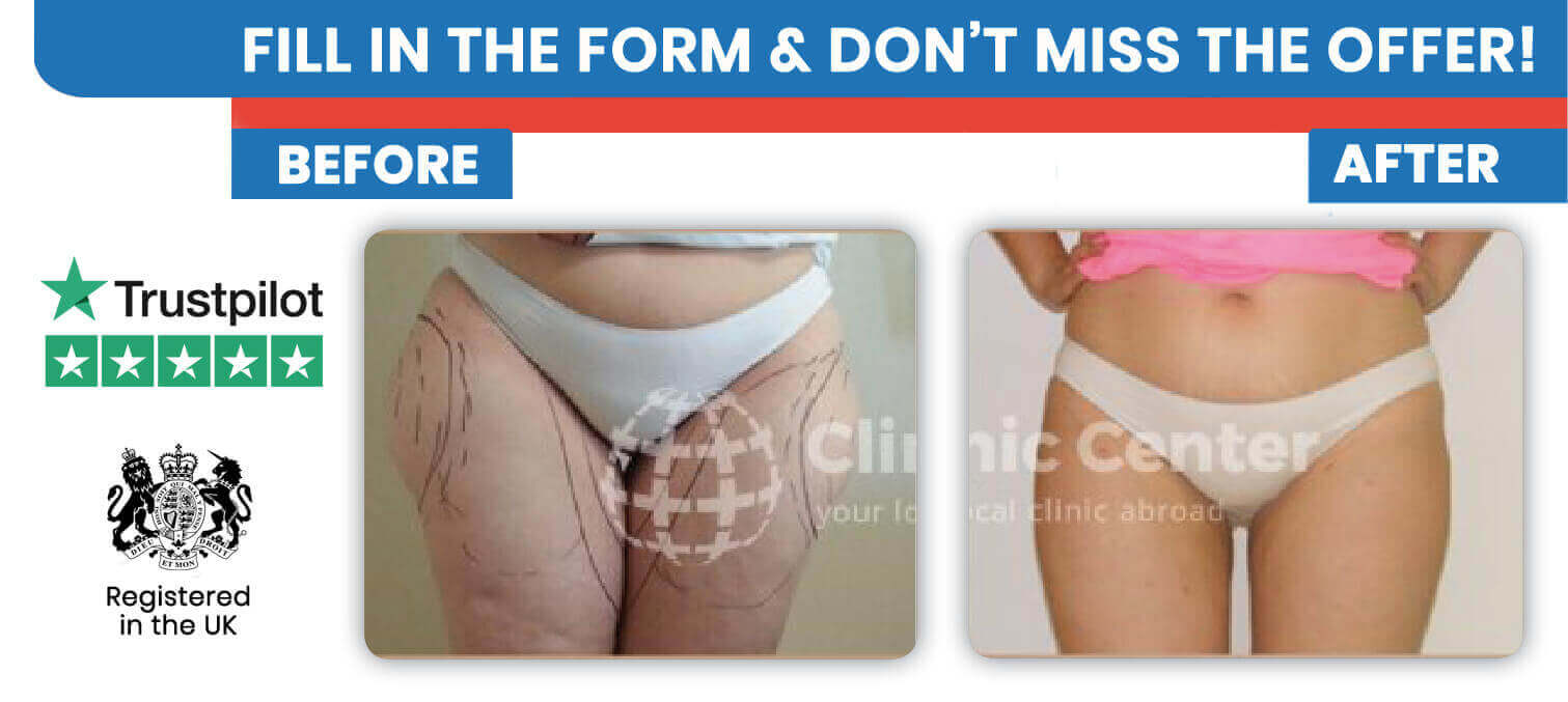 Liposuction and Fat removal in Turkey