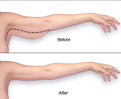 Arm Lift in Turkey Before After