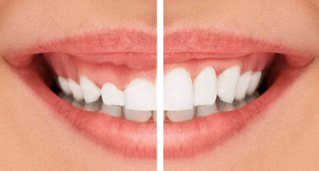 Gingivectomy in Turkey
