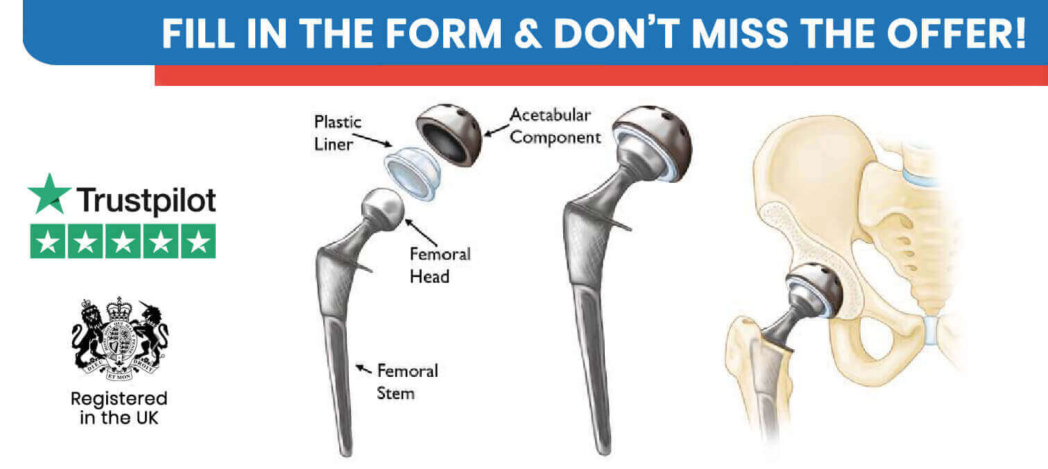 Hip Replacement in Turkey