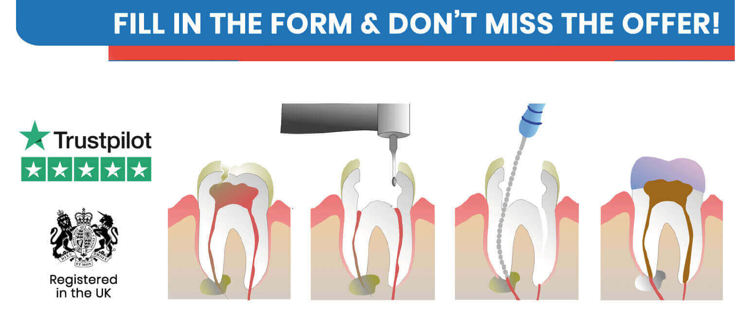 Root Canal Treatment with Clinic Center